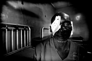 Photo portraid of Isa following eye surgery, Ghana, Africa by Marielle van Uitert
