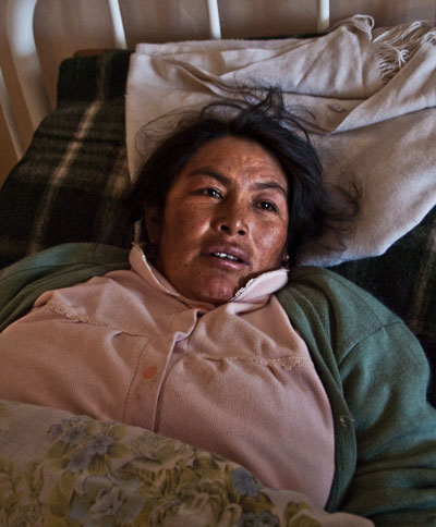 Photo portrait of a Bollivian woman in Cerro Rico who is ill from mine-related disease by Michelle Wong